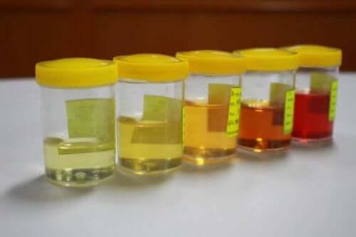 Lär dig allt om avvikelser i urinen