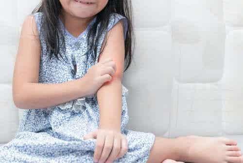 Hur man tar hand om barn med psoriasis