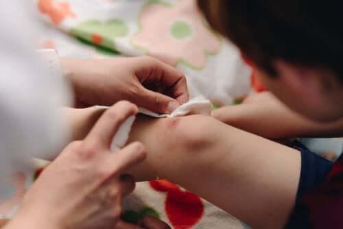 Barn med sår