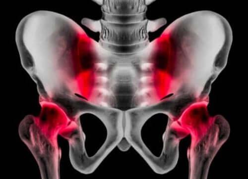 Orsaker, symptom och behandling av sportbråck