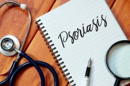 Fem positiva vanor när man har psoriasis