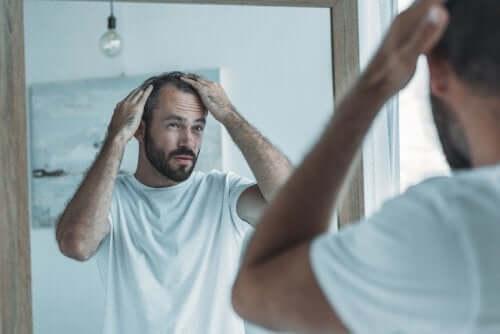 Man med håravfall