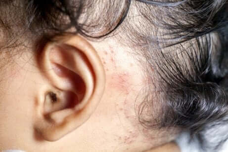 Psoriasis i skalpen