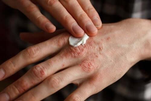 Skydda huden: vanor för psoriasis