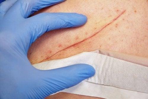 Grundläggande tekniker för att stänga sår