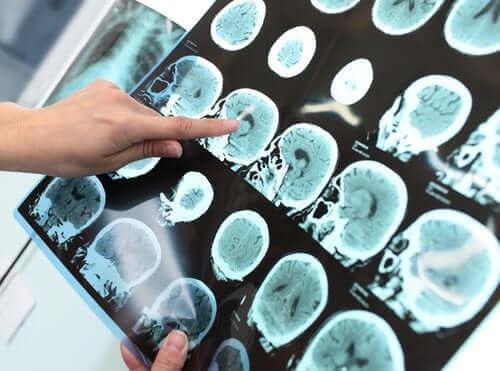 Allvarlig kognitiv störning (demens)