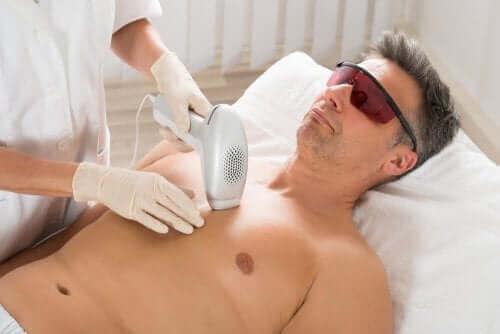 Hårborttagning med laser