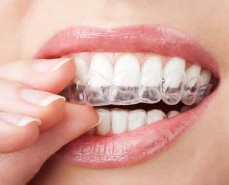 Genomskinlig tandskena