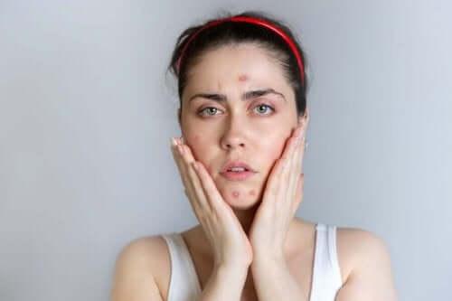Kvinna med akne i ansiktet