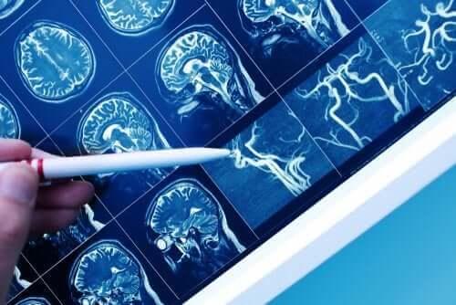Vad är vaskulär demens (blodkärlsdemens)?