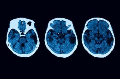 Diagnos och behandling av posterior kortikal atrofi