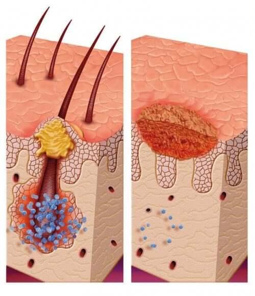 Diagram av hårsäckarna