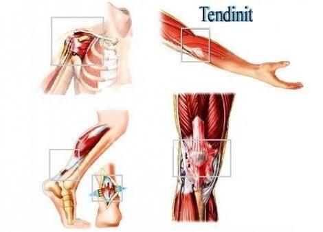 Tendinit i musklerna