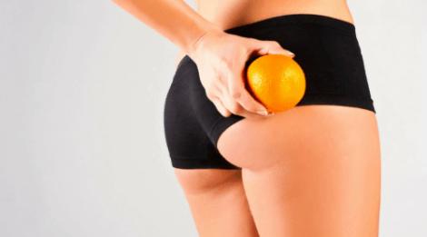Apelsinhud är en konsekvens