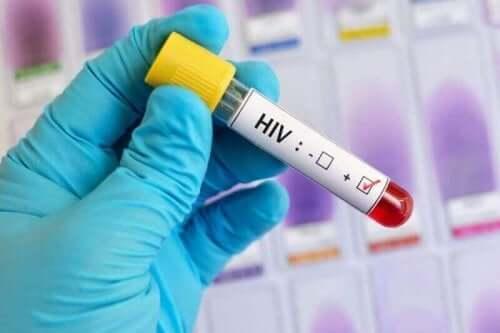 Blodprov för HIV