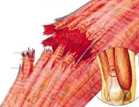 Brustna muskelfibrer