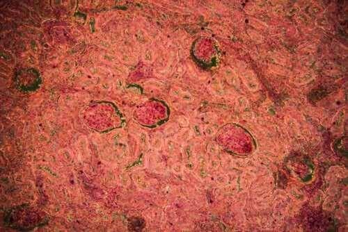 Diagnos njurtuberkulos: symptom och behandling