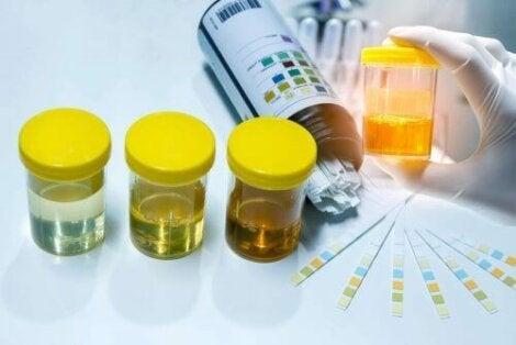vita blodkroppar i urinen normalvärde