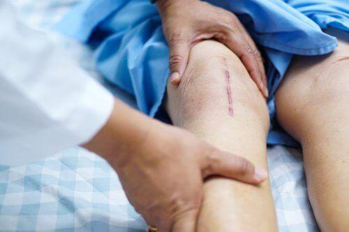 Återhämtning efter en knäprotesoperation