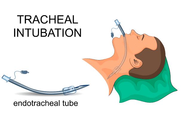 Illustration av hur intubation går till.