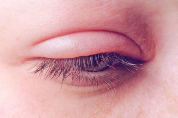 Inflammation i ögonlocken - orsaker och behandling