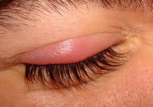 Inflammerat ögonlock