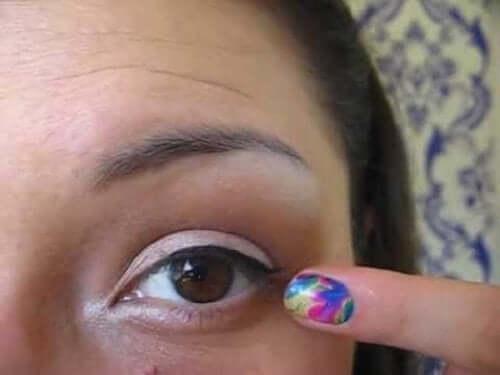 Öga drabbat av blefarit