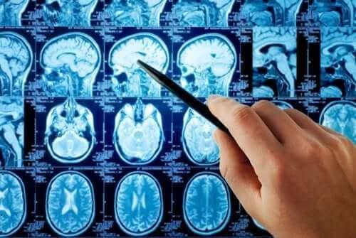 Röntgenbilder av hjärnan