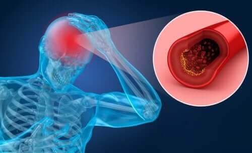 Riskfaktorer och symptom på stroke