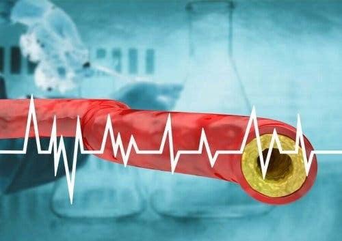 illustration av artär med åderförkalkning och kurva med hjärtrytm