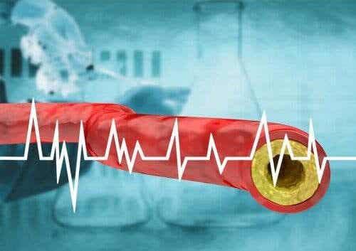 Håll ditt kolesterol i schack med hjälp av kosten