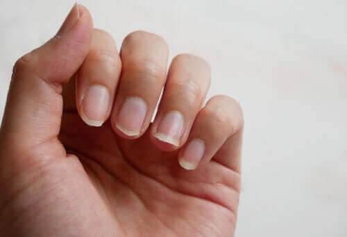 Fyra naturliga ingredienser för att behandla sköra naglar