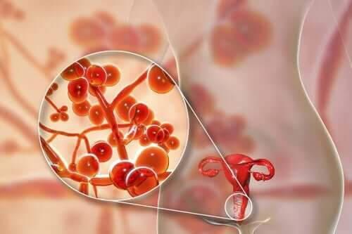 Mycoplasma Genitalium - orsaker, symptom och behandling