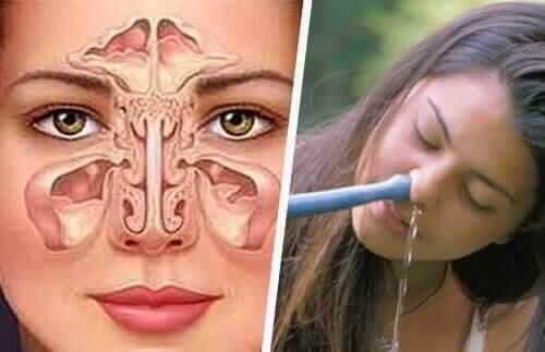 skölja näsan med nettipot samt illustration av bihålorna och näsan