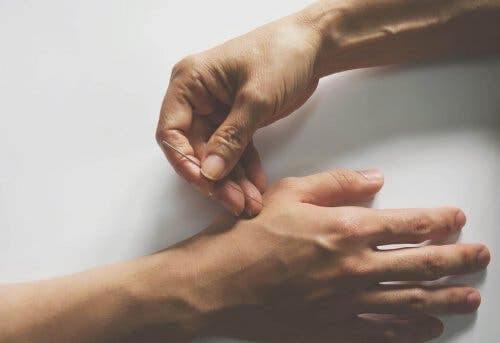 Akupunktur: någon sticker in akupunkturnål i hand