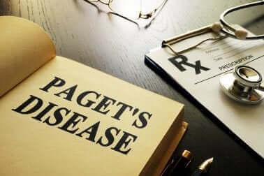 Pagets sjukdom - allt du behöver veta