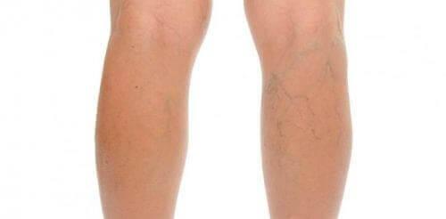 Ett par ben med åderbråck.