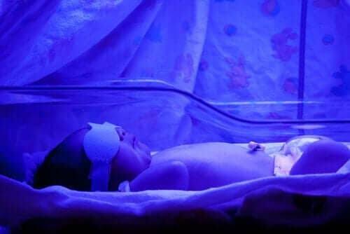 Vad du bör känna till om gulsot hos nyfödda