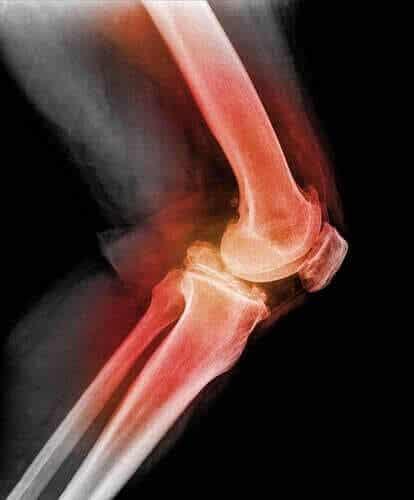 Lär dig allt om dislokation av knäskålen