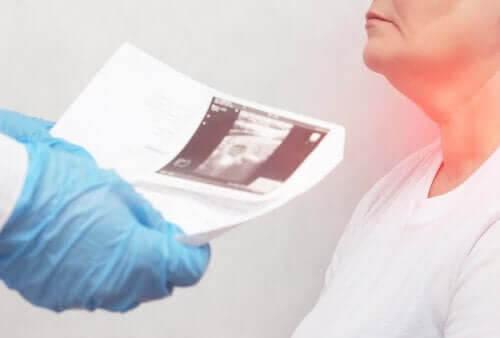 Knutor på sköldkörteln - symptom och orsaker