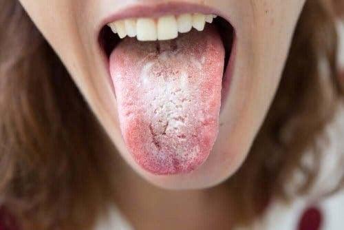 Mörka fläckar på tungan: kvinna med svamp på tungan