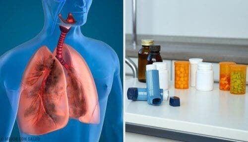 illustration av lungor och luftvägar vid behandling med aerosolterapi