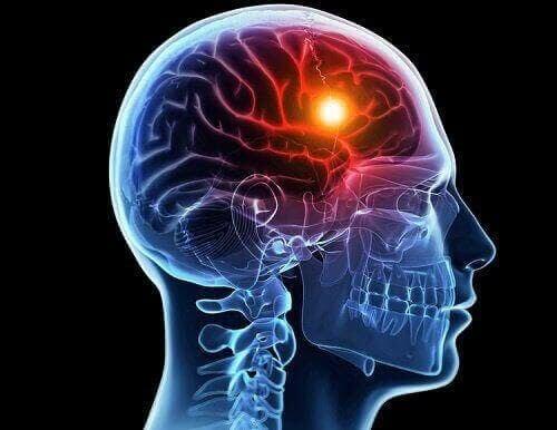 Syrebrist i hjärnan: illustration av hjärna i kropp