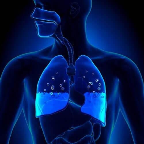 Symptom och orsaker till lungödem