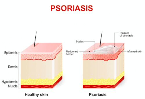 illustration av psoriasis