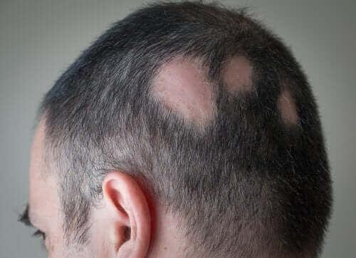 Minoxidil: man med kala fläckar på huvudet