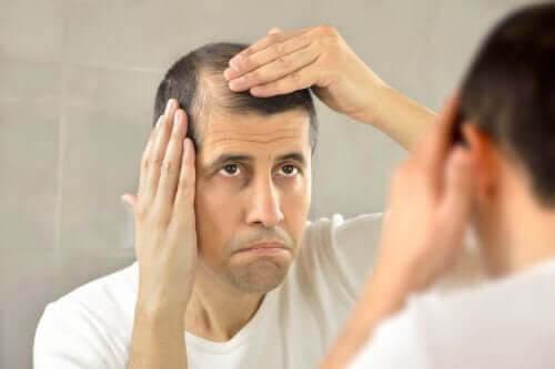 Minoxidil: man med kala fläckar på huvudet tittar sig i spegeln