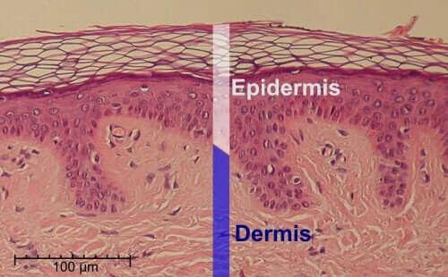 bild av huden i genomsnitt