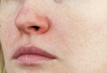 Vad är couperose? Egenskaper och behandlingar