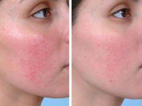 Före- och efterbild av en kvinna med rodnande hud.